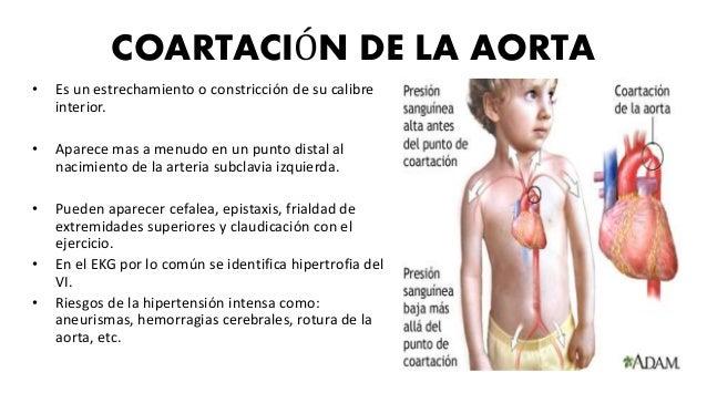 TETRALOGIA DE FALLOT • Los cuatro componentes son: 1. Cabalgamiento de la aorta. 2. Hipertrofia del ventrículo derecho 3. ...