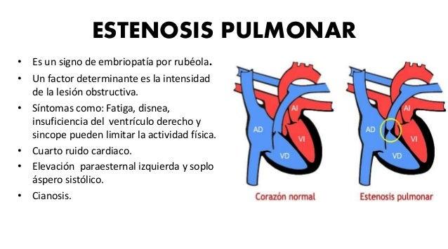 TRANSPOSICIÓN DE GRANDES ARTERIAS • Dextrotransposición. • Aorta nace por delante del ventrículo derecho. • Arteria pulmon...