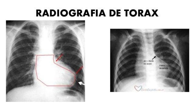 ATRESIA TRICÚSPIDE • Se caracteriza por atresia de la válvula tricúspide. • Comunicación interauricular. • Hipoplasia del ...