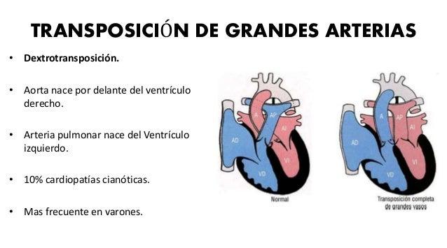 ANOMALIA DE EBSTEIN • Se caracteriza por un descenso de la válvula tricúspide y penetración en el ventrículo derecho. • Ve...