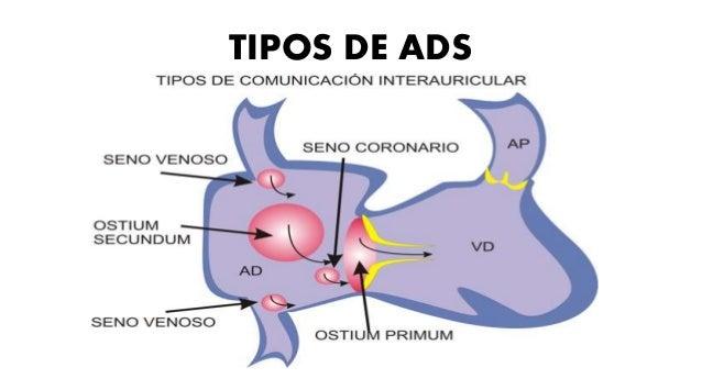 EXPLORACIÓN FISICA • Se identifica un impulso notable del ventrículo izquierdo, así como una pulsación palpable de la arte...