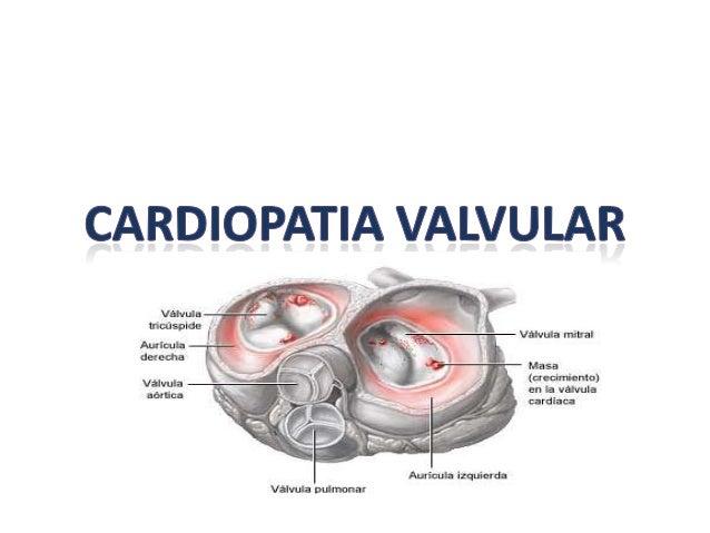 cardiopatia valvular