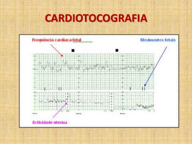 Exame cardiotocografia anteparto