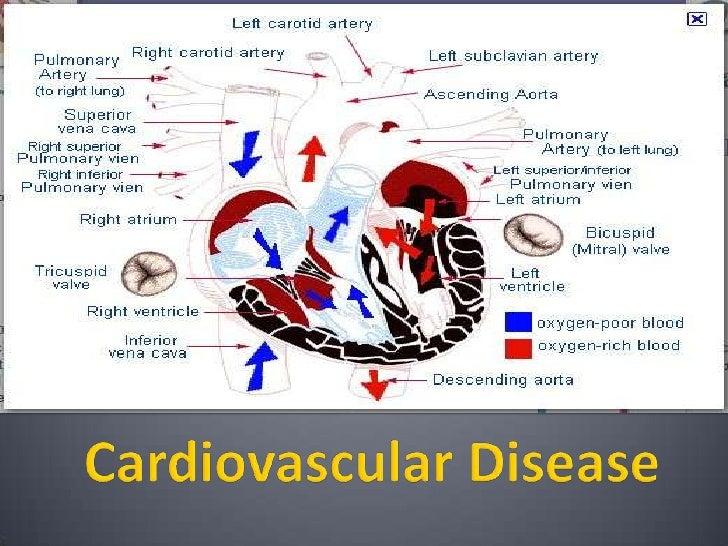 Cardiovascular Disease<br />