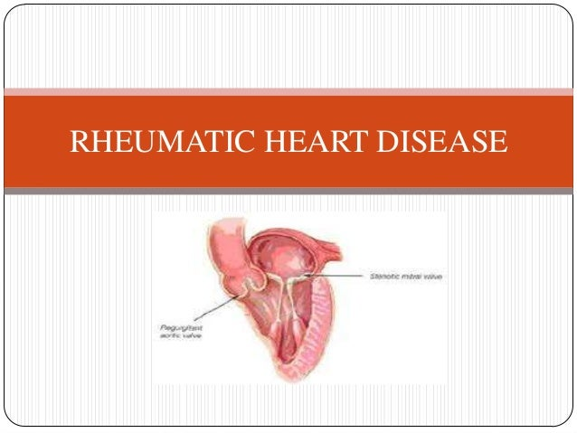 cardio vascular disease Webmd describes the risks and potential problems with arteries, veins, and lymph vessels inside your body.