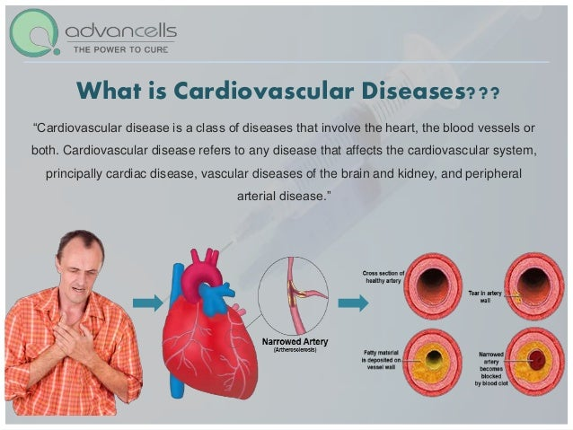 what is a cardiovascular problem