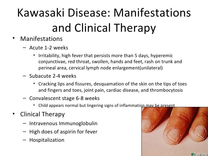 Kawasaki Disease Discharge Teaching