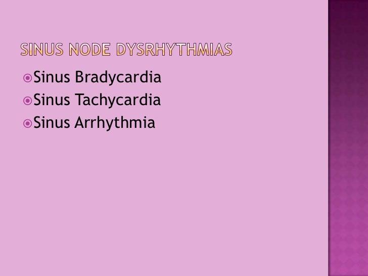 Sinus Bradycardia<br />Sinus Tachycardia<br />Sinus Arrhythmia<br />Sinus Node Dysrhythmias<br />