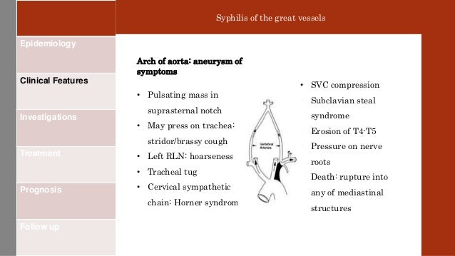 Cardiovascular syphilis Cardiovascular Syphilis Symptoms