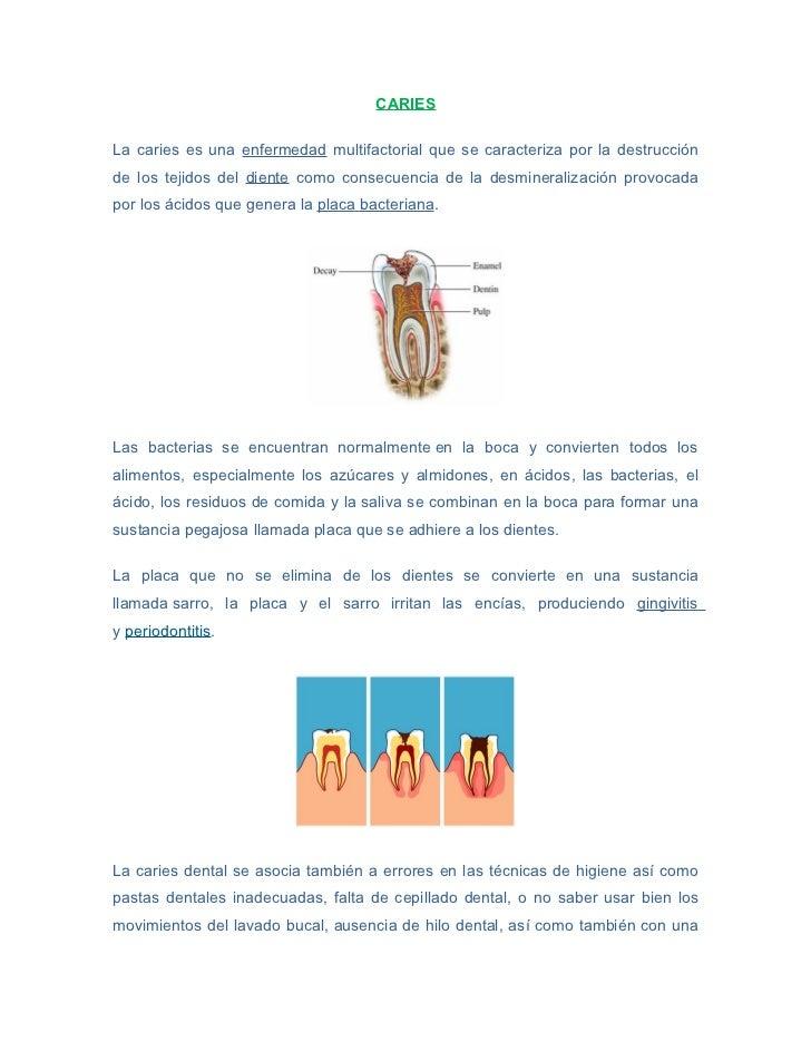 CARIESLa caries es una enfermedad multifactorial que se caracteriza por la destrucciónde los tejidos del diente como conse...