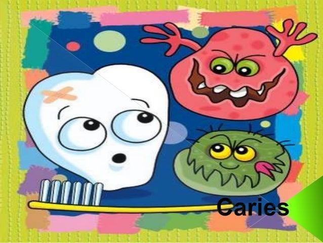  La caries es una enfermedad infecciosa  que se caracteriza por la destrucción de  los tejidos duros del diente provocada...