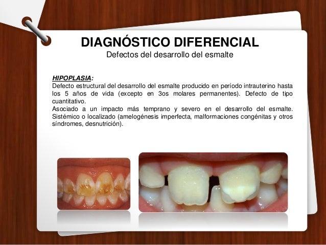DIAGNÓSTICO DIFERENCIAL Lesiones no cariosas ABFRACCION: Lesiones crónicas, diferentes a caries dental que causan pérdida ...