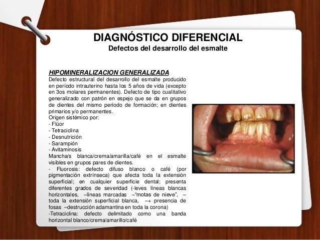 DIAGNÓSTICO DIFERENCIAL Lesiones no cariosas ABRASIÓN: Lesiones crónicas, diferentes a caries dental que causan pérdida ir...