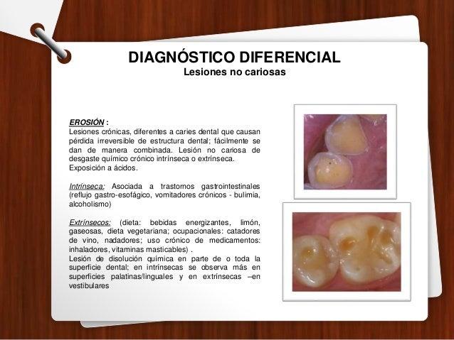 INDICE CEO-D/COP-D Calcule el índice ceo-d (dientes temporales) / COP-D (dientes permanentes) del paciente. 1. Cuente el n...