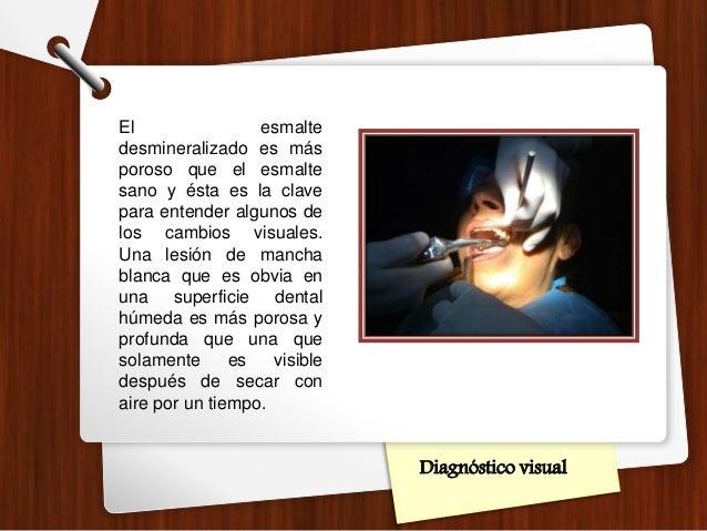 Diagnóstico visual El esmalte desmineralizado es más poroso que el esmalte sano y ésta es la clave para entender algunos d...