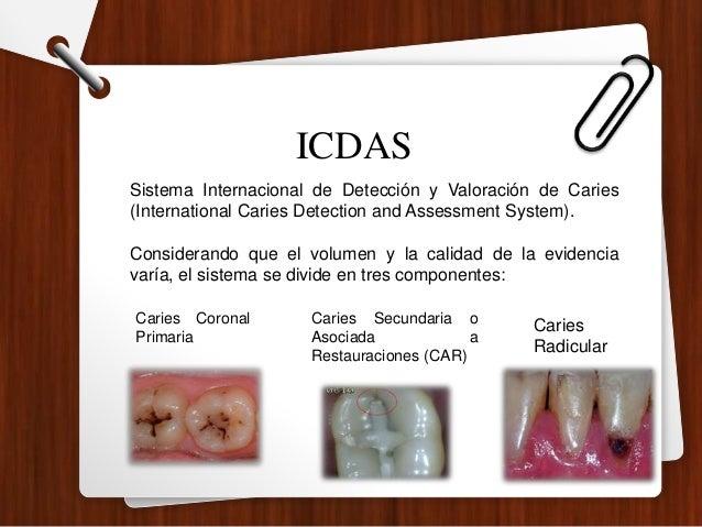 Sistema Internacional de Detección y Valoración de Caries (International Caries Detection and Assessment System). Consider...