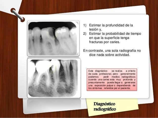 Diagnóstico radiográfico 1) Estimar la profundidad de la lesión y, 2) Estimar la probabilidad de tiempo en que la superfic...