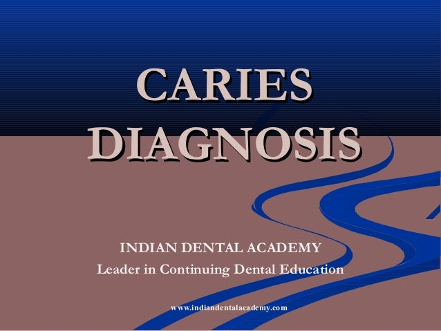 CARIESDIAGNOSIS   INDIAN DENTAL ACADEMYLeader in Continuing Dental Education           www.indiandentalacademy.com