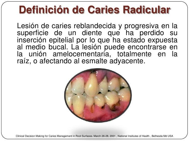 Definición de Caries RadicularLesión de caries reblandecida y progresiva en lasuperficie de un diente que ha perdido suins...