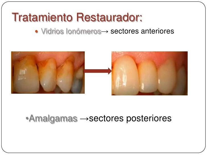 Tratamiento Restaurador:     Vidrios Ionómeros→ sectores anteriores  •Amalgamas →sectores posteriores