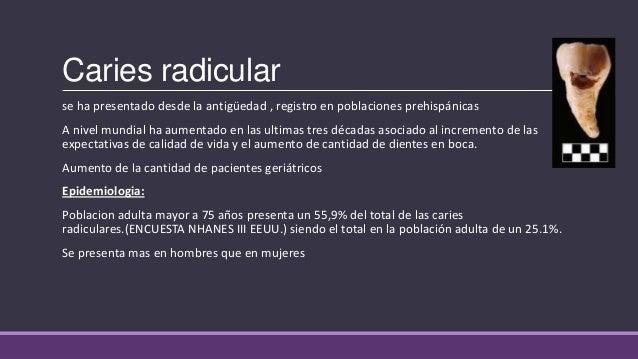 Caries Radicular En Pacientes Geriatricos Pdf