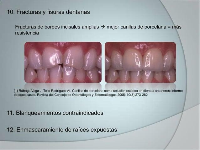 10. Fracturas y fisuras dentariasFracturas de bordes incisales amplias  mejor carillas de porcelana = másresistencia11. B...