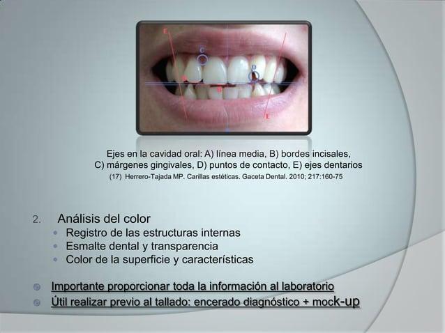 Ejes en la cavidad oral: A) línea media, B) bordes incisales,C) márgenes gingivales, D) puntos de contacto, E) ejes dentar...