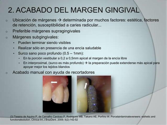 2. ACABADO DEL MARGEN GINGIVALo Ubicación de márgenes  determinada por muchos factores: estética, factoresde retención, s...