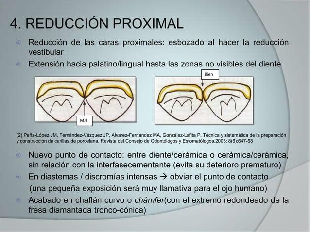 4. REDUCCIÓN PROXIMAL Reducción de las caras proximales: esbozado al hacer la reducciónvestibular Extensión hacia palati...