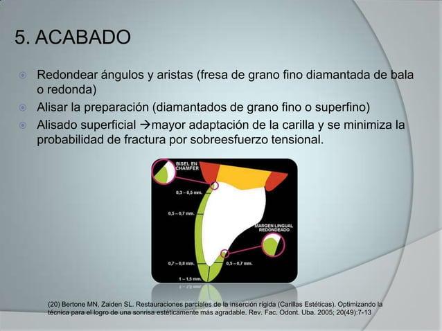 5. ACABADO Redondear ángulos y aristas (fresa de grano fino diamantada de balao redonda) Alisar la preparación (diamanta...