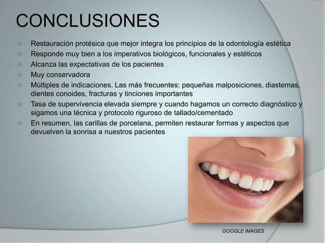 CONCLUSIONES Restauración protésica que mejor integra los principios de la odontología estética Responde muy bien a los ...