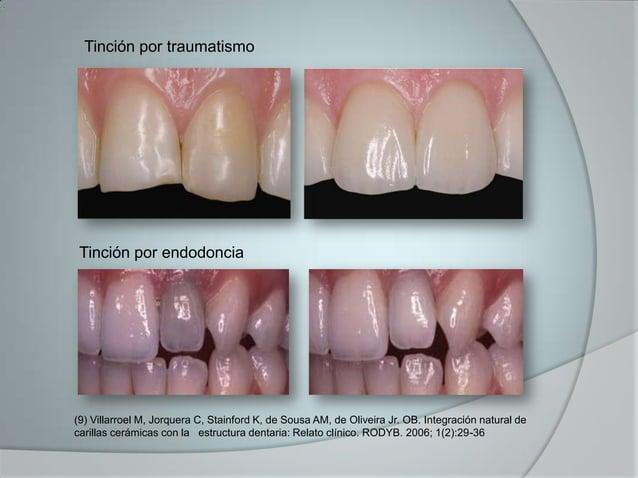 Tinción por traumatismoTinción por endodoncia(9) Villarroel M, Jorquera C, Stainford K, de Sousa AM, de Oliveira Jr. OB. I...