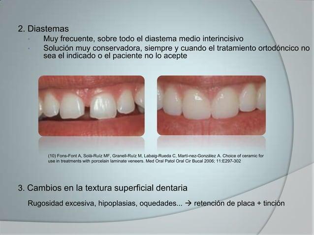 2. Diastemas• Muy frecuente, sobre todo el diastema medio interincisivo• Solución muy conservadora, siempre y cuando el tr...