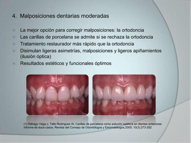 4. Malposiciones dentarias moderadas La mejor opción para corregir malposiciones: la ortodoncia Las carillas de porcelan...