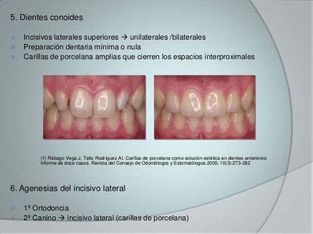 5. Dientes conoides Incisivos laterales superiores  unilaterales /bilaterales Preparación dentaria mínima o nula Caril...
