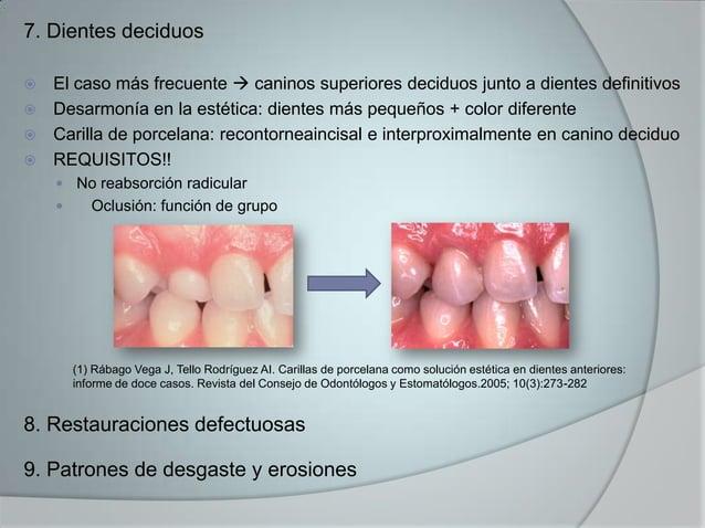 7. Dientes deciduos El caso más frecuente  caninos superiores deciduos junto a dientes definitivos Desarmonía en la est...