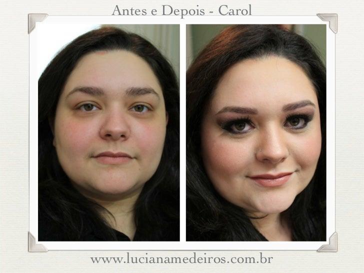 Antes e Depois - Carolwww.lucianamedeiros.com.br