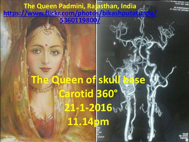 The Queen of skull base Carotid 360° 21-1-2016 11.14pm The Queen Padmini, Rajasthan, India https://www.flickr.com/photos/b...