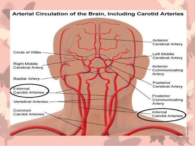 Carotid Artery And Ophthalmic Artery2 2