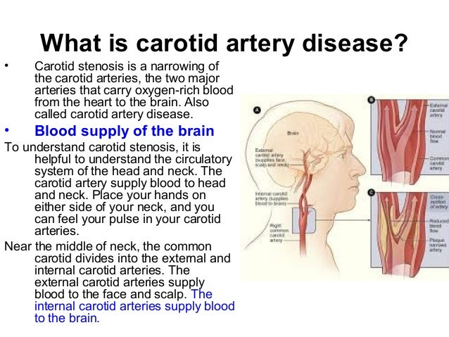 carotid artery disease, Human Body