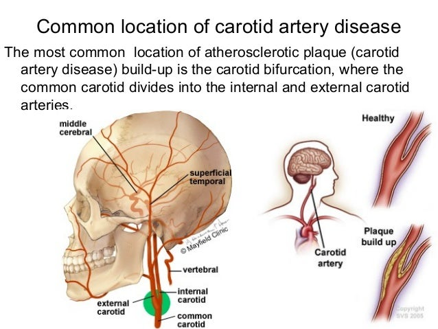how to build collateral arteries