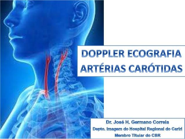 O ultrassom Doppler de carótidas é, de longe, o exame mais realizado no mundo para o estudo da doença carotídea. Estima-se...