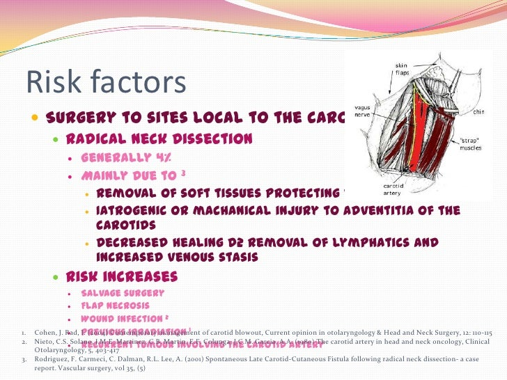 Risk factors      Surgery to sites local to the carotid artery         Radical Neck Dissection                  General...
