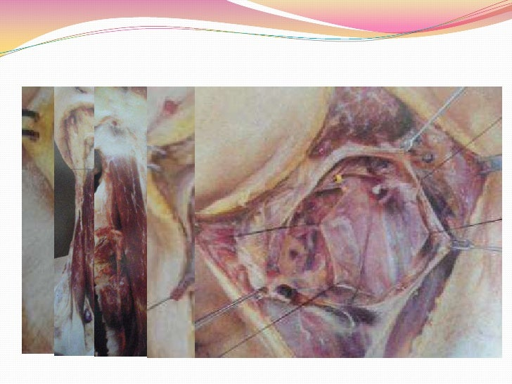 Muscular flaps Levator Scapulae  flap; is an option  during radical  neck dissection Inferior border  of muscle  divided...