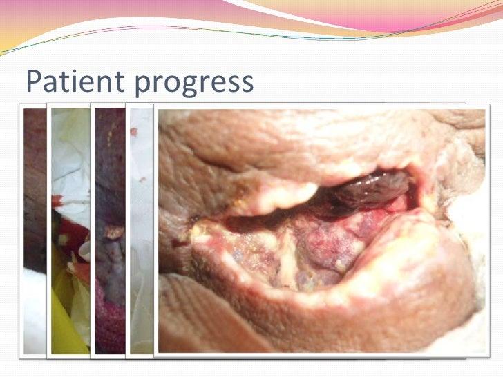 Patient progress