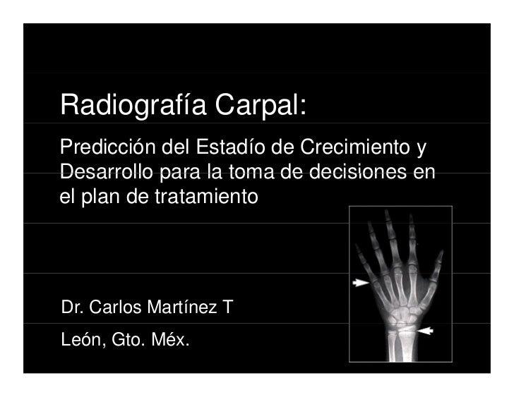 Radiografía Carpal: Predicción del Estadío de Crecimiento y Desarrollo para la toma de decisiones en el plan de tratamient...