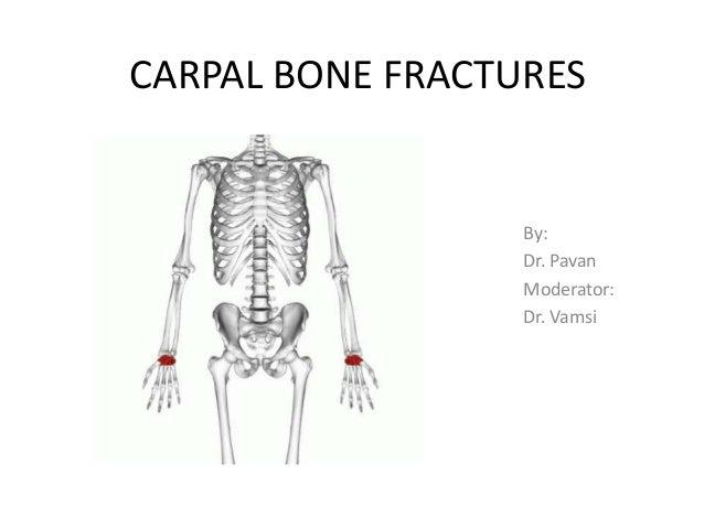 CARPAL BONE FRACTURES By: Dr. Pavan Moderator: Dr. Vamsi