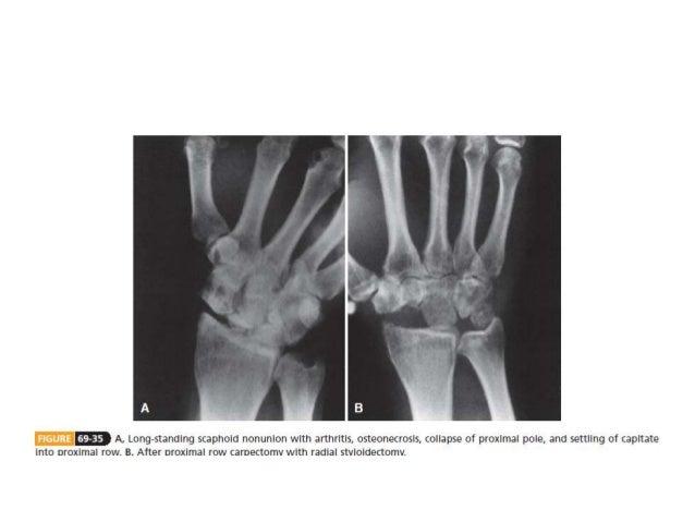 Carpal Bone Fractures