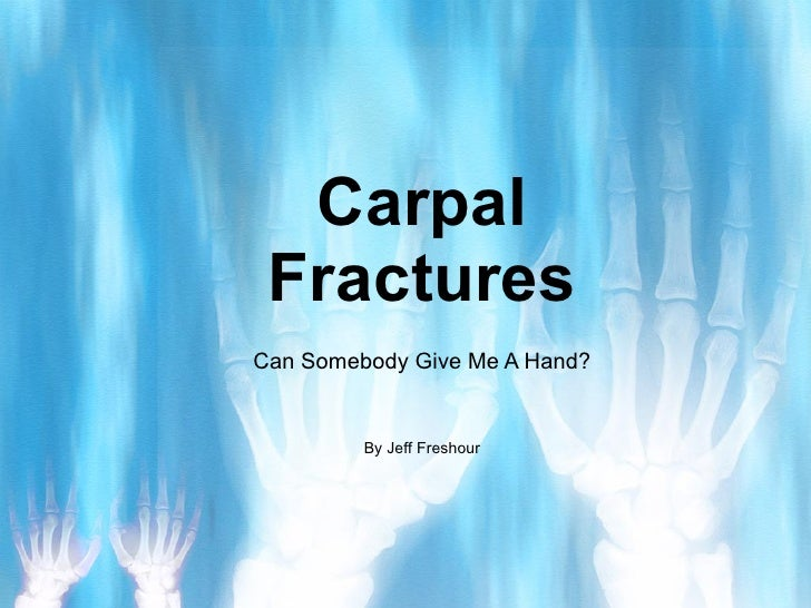 Carpal Fractures