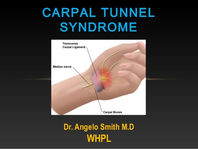 Dr. Angelo Smith M.D WHPL CARPAL TUNNEL SYNDROME